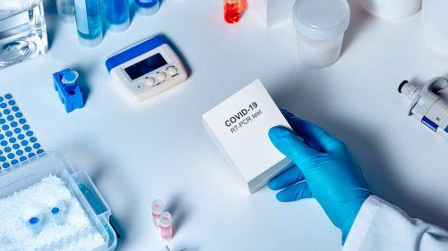 Agențiile de turism solicită anularea obligativității prezentării testelor negative la COVID-19 la frontieră